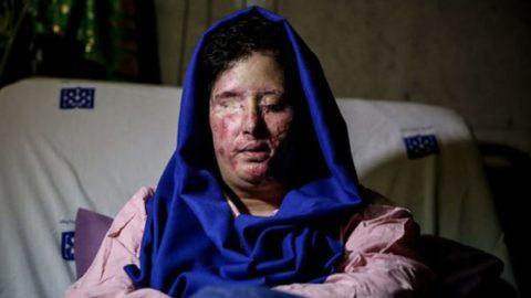 آخرین وضعیت قربانی اسیدپاشی اصفهان پس از عمل هفت ساعته