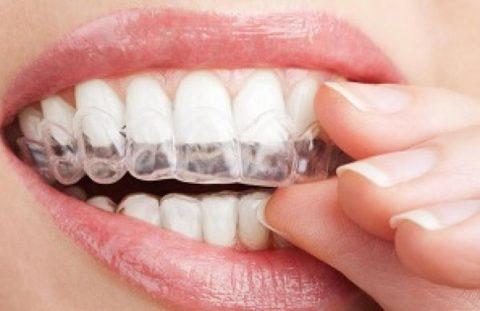 قویترین سفیدکننده خانگی که دندان هایتان را مثل مروارید زیبا میکند