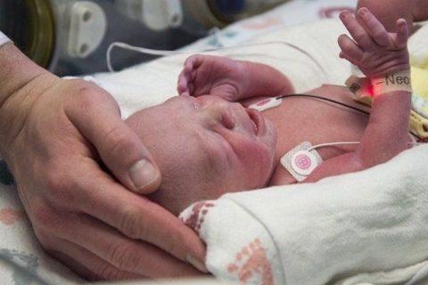 کودکی با رحم پیوندی متولد شد